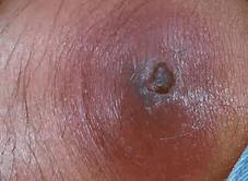 噛まれて傷ついた部位から別の細菌の侵入が考えられ、炎症を起こしてしまうケース