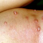 水いぼの感染経路や感染力は?お風呂や洗濯の時に予防方法はある?