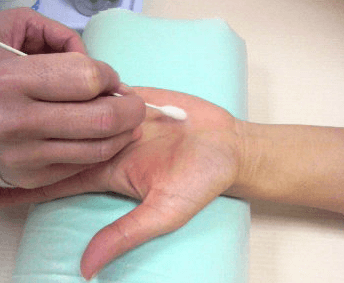 液体窒素を綿棒に染み込ませ水いぼを治療していく様子