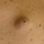 粉瘤がおしりや顔にできやすい原因はストレスや体質?予防はできる?
