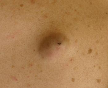 粉瘤がおしりや顔にできやすい原因