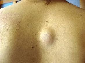 背中の脂肪腫の画像