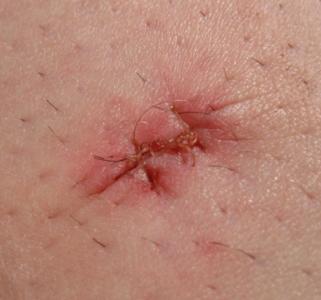 脂肪腫の手術後に出る痛みや赤み