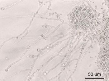 カンジダ菌の顕微鏡写真