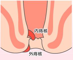 内痔核の症状と治療方法