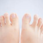 水虫の症状が足や指の間にできてかゆい!どんな薬が効く?写真で説明