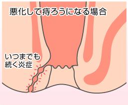 痔瘻の症状と治療方法