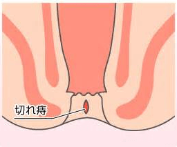 裂肛れっこうの症状と治療方法