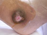 足の壊疽と切断の可能性