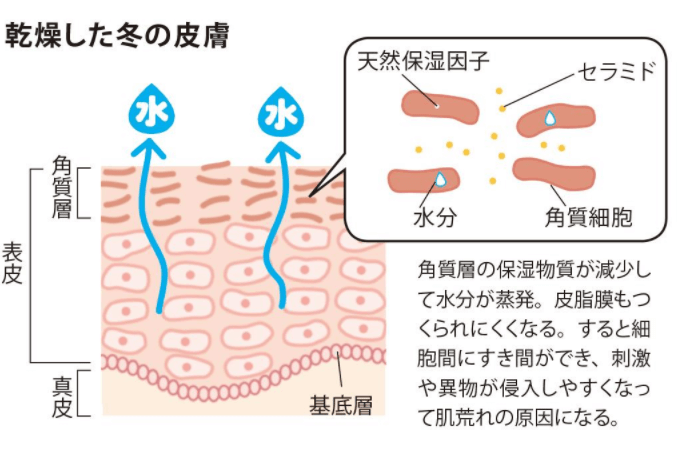 冬の場合の肌のかゆみの原因