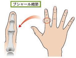 手指の関節の痛みの原因 ブシャール結節