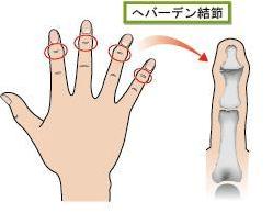 手指の関節の痛みの原因 ヘパーデン結節