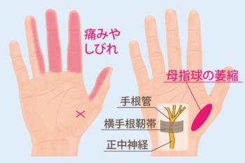 手指の関節の痛みの原因 手根管症候群