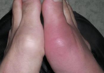 手指の関節の痛みの原因 痛風