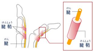 手指の関節の痛みの原因 腱鞘炎