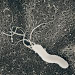 ピロリ菌の除菌方法とその検査方法まとめ!薬の費用や副作用など注意点も