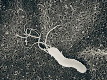 日本の40歳以上の人の2人に1人が感染していると言われているピロリ菌