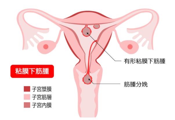 粘膜下筋腫