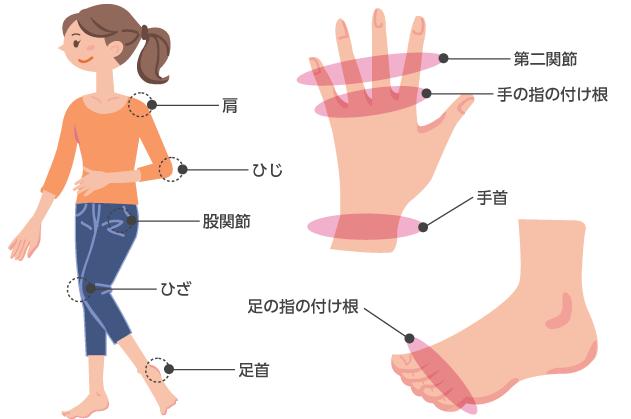 関節リウマチの特徴的な症状