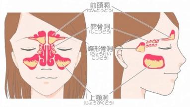 おでこの痛み・目の痛み・頭痛・頬の痛み(歯痛)・発熱