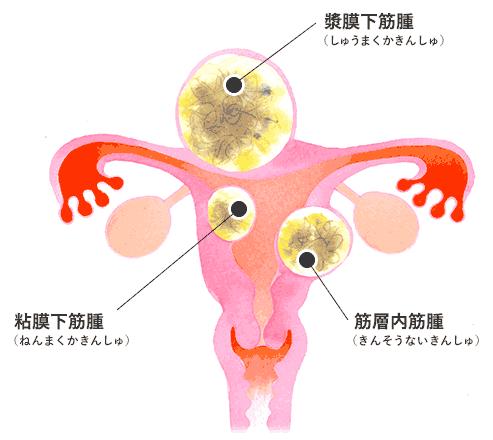 子宮筋腫ができる部分