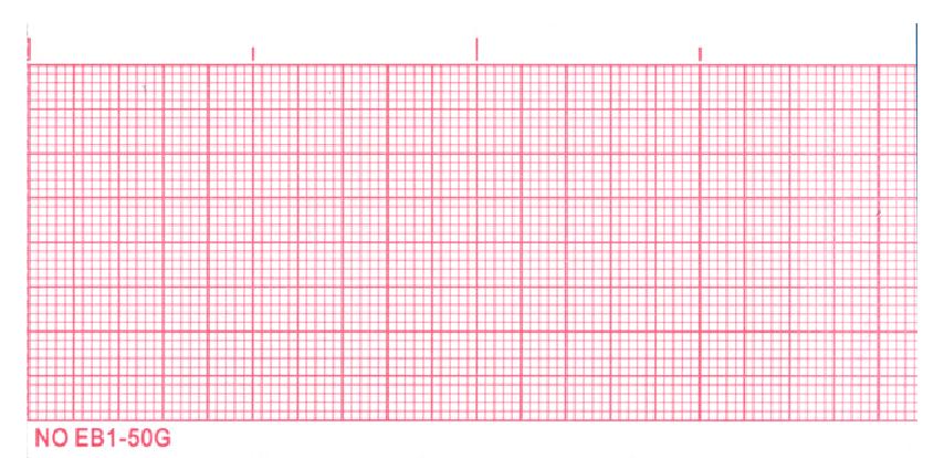 サイナスリズムの心電図上での速度の見方