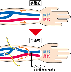 動脈と静脈の血管を皮下で繋いだシャント