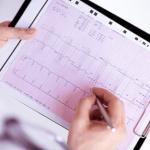 医療用語のサイナスとはどんな意味?サイナスリズムの定義や心電図波形の画像も