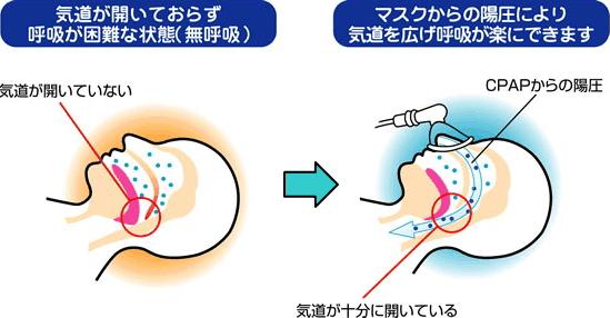 経鼻的持続陽圧呼吸療法(CPAP:シーパップ)