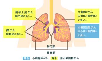 肺がんとは気管支や肺胞で発生する悪性腫瘍