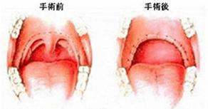 閉塞型の無呼吸症候群は肥大した扁桃腺などがいびきの原因