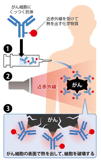光免疫療法の治療方法