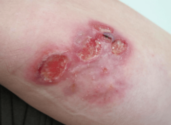 炎症を起こしている傷口
