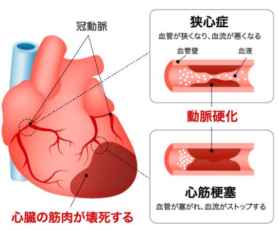 狭心症とは一時的に酸素が不足する心筋虚血状態