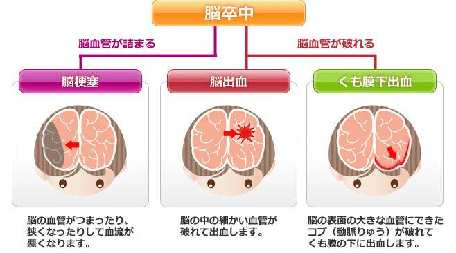 脳梗塞とは