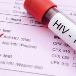 HIV感染症の初期症状はいつからどれくらい続く?発熱・発疹・咳・鼻水・下痢など