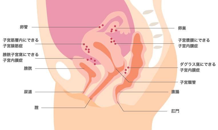 子宮内膜症で起こる生理痛以外の痛み