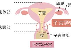 淋菌が子宮頸管に感染した場合の症状
