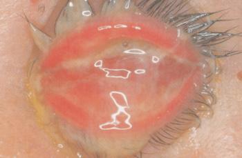 淋菌が目に感染した時の症状