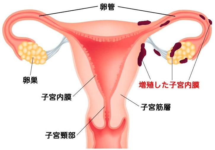 生理の血液が子宮の中を逆流して卵巣や直腸、膀胱などといった子宮以外の場所にくっついてしまう
