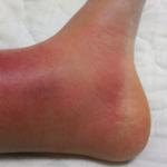 蜂窩織炎の症状を写真で説明!悪化するとどうなる?手や足以外に顔にも出る?