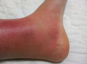 蜂窩織炎の症状の写真