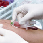 E型肝炎の症状や治療方法は?ウイルスの感染経路や検査方法も紹介!