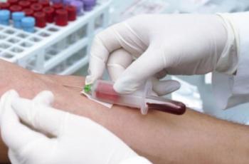 E型肝炎の症状や治療方法