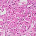 アミロイドーシスの症状は?透析や多発性骨髄腫によるものについても説明!