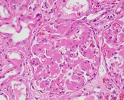 アミロイドーシスの症状
