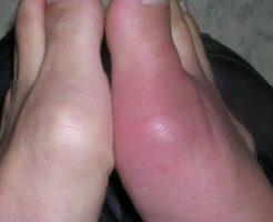 痛風発作が発生した足指の関節