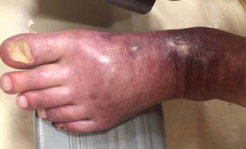 しもやけの左足の指
