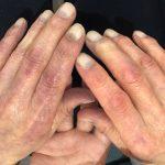 しもやけの治療は皮膚科で受ける?治療方法は薬を飲んだり軟膏を塗るの?