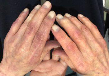 しもやけの手指